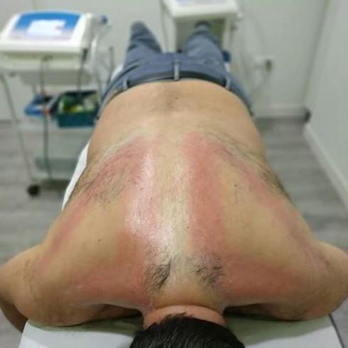 HIPEREMIA. Centro de fisioterapia Vida