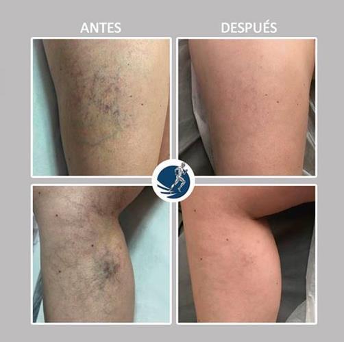 Arañas vasculares después de dos sesiones con El equipo de Diatermia Recuperadora + Ions-Resonance Symphium-One Plus®